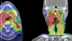 Image: Irradiation plan of a head and neck tumor; Copyright: University Hospital of the Ludwig-Maximilians-Universität München