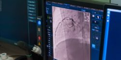Image: Screen showing an image from cardiovascular angiography; Copyright: panthermedia.net/fly_wish