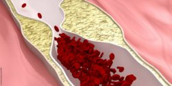Image: Graphic depiction of a blood vessel with stenosis and slowed circulation; Copyright: panthermedia.net/CLIPARAE