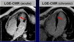 Image: Collage of several MRI images of the heart, in which different locations are marked with red arrows; Copyright: University Hospital Münster/Ali Yilmaz