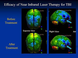 Photo TBI laser before and after