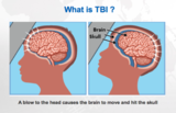 what is TBI