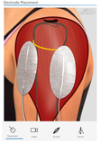 NMES App Electrode Placement